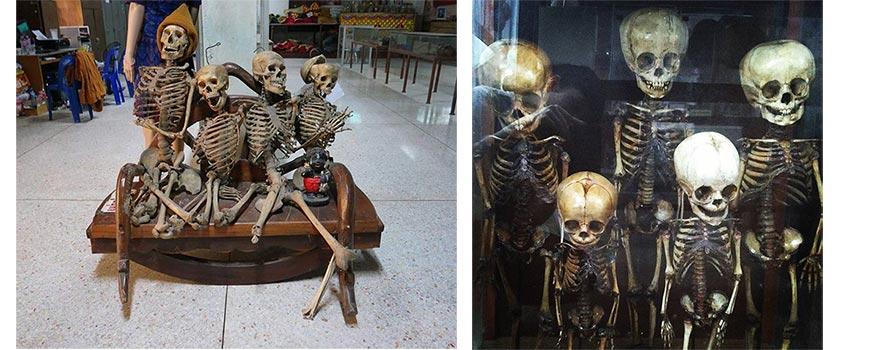 Музей медицины и смерти